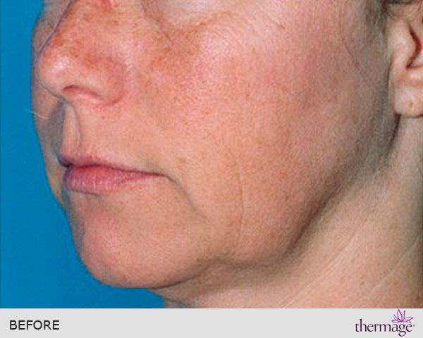 Thermage radiofrequency - Ribe Clinic